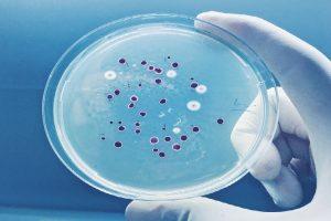 Ứng dụng của phụ gia kháng khuẩn khuẩn trong sản xuất sơn